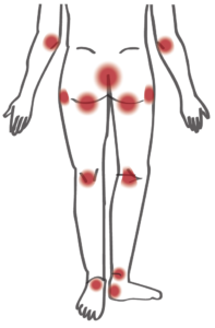 spinal cord injury skin pressure injury ulcer trouble spot